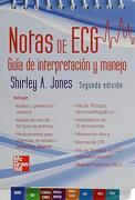 Notas de Egg: Guía de Interpretación y Manejo - Jones - Mcgraw-Hill